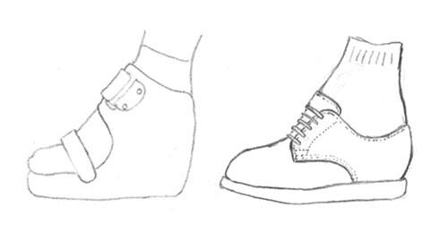 用途に合わせた装具・靴